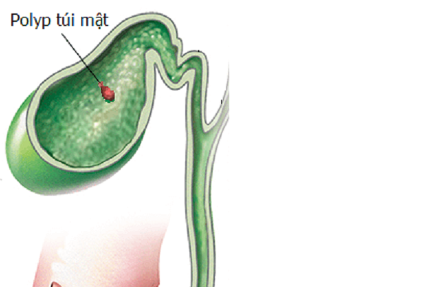 Polyp túi mật 3mm là gì? Điều trị thế nào?