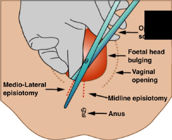 Quy trình cắt khâu tầng sinh môn
