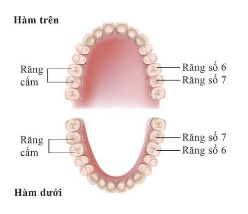 Răng cấm (hay còn gọi là răng số 6, số 7) là những răng mọc đều ở góc hai hàm, mỗi hàm gồm 4 răng