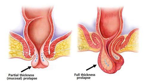 Sa trực tràng có 2 loại là: sa trực tràng toàn phần và sa trực tràng một phần