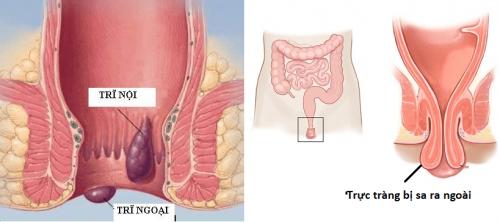 Sa trực tràng thường được sử dụng đồng nghĩa với bệnh sa trực tràng hoàn toàn hay còn gọi là sa trực tràng ra bên ngoài