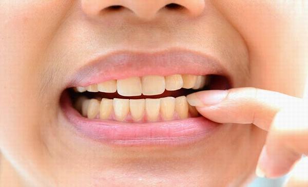 Sau khi nắn chỉnh hàm, người bệnh nên tránh cười lớn, ngáp to hoặc nghiến răng khi ngủ...