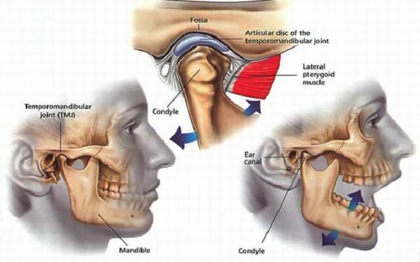 Ngáp lớn hoặc cười to, nằm ngủ sai tư thế... là những nguyên nhân gây sái quai hàm