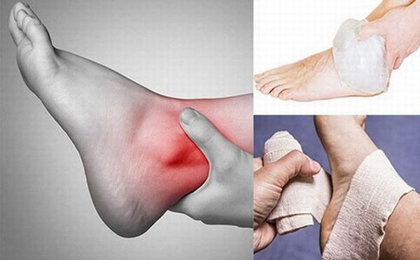 Cần sơ cứu đúng cách để giảm đau và ngừa biến chứng