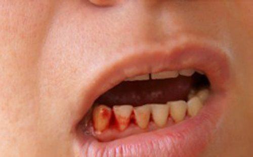 Chảy máu chân răng là một trong những triệu chứng của sốt xuất huyết.