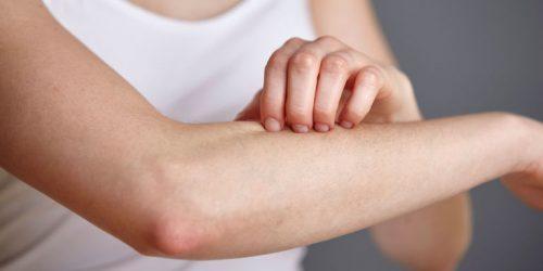 Bị sốt xuất huyết quan hệ có sao không là băn khoăn, thắc mắc của rất nhiều người đặc biệt là những bệnh nhân sốt xuất huyết.