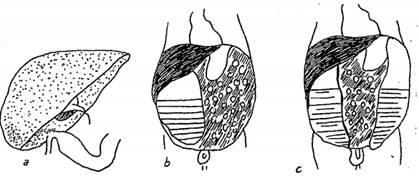 Các loại viêm phúc mạc bào thai: a. Viêm phúc mạc dính; b. Viêm phúc mạc thai nhi kết bọc, hình thành nang giả; c. Viêm phúc mạc kết bọc, viêm phúc mạc phân su.