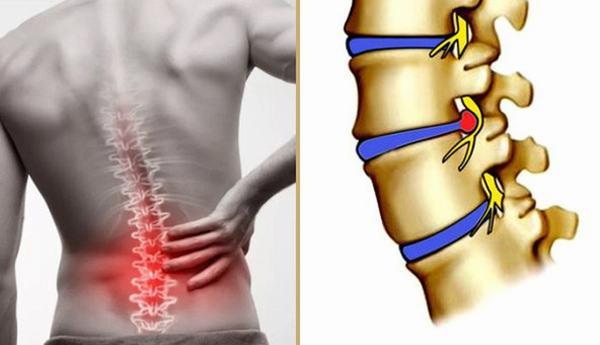 Thoát vị đĩa đệm khiến người bệnh đau đớn, gặp khó khăn trong vận động, sinh hoạt