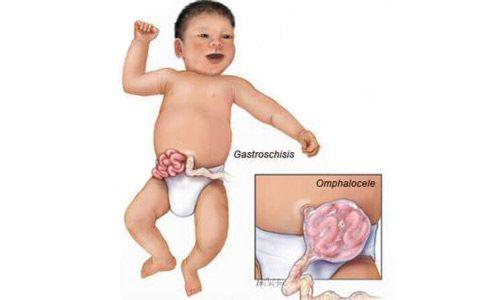 Thoát vị thành bụng bẩm sinh thường dễ nhận thấy bằng mắt thường do lỗ trên bụng và ruột của bé nằm ở bên ngoài cơ thể.