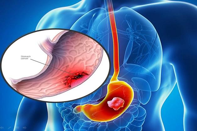 thủ phạm đứng sau ung thư dạ dày đại tràng