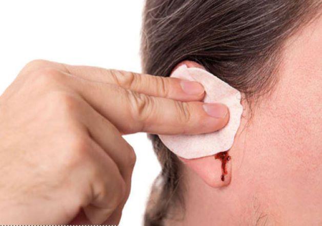 Người bị thủng màng nhĩ có chảy nhiều máu không?