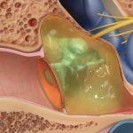 Thủng màng nhĩ có chảy máu nhiều không và khắc phục ra sao?