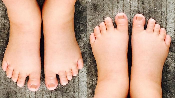 Chân, tay, mặt bị phù nề là một trong những biểu hiện của tiền sản giật sau sinh.