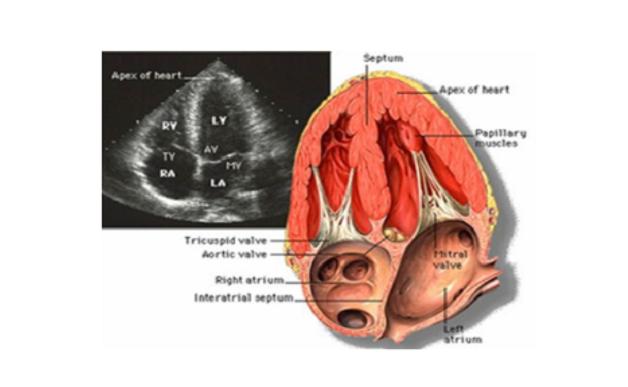 tìm hiểu pap trong siêu âm tim
