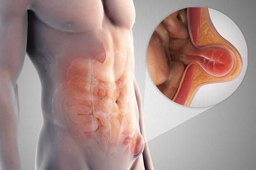 Thoát vị thành bụng xảy ra khi cơ thành bụng bị hở hoặc yếu, gây ra một khối lồi lên trên bụng.