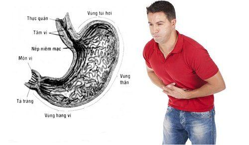 Khi thấy xuất hiện các triệu chứng nghi mắc bệnh ở dạ dày cần tiến hành nội soi để chẩn đoán chính xác bệnh