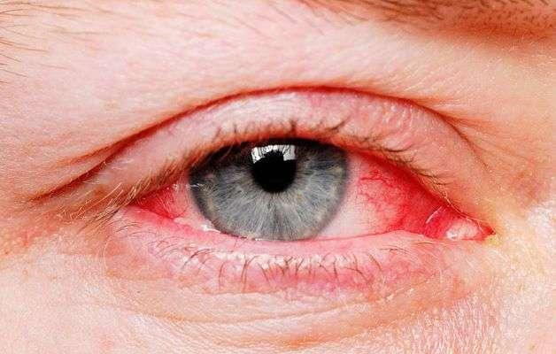 Viêm kết mạc hay còn có tên gọi khác là đau mắt đỏ. Bệnh thường xảy ra vào mùa xuân hè và có khả năng lây lan thành dịch bệnh.