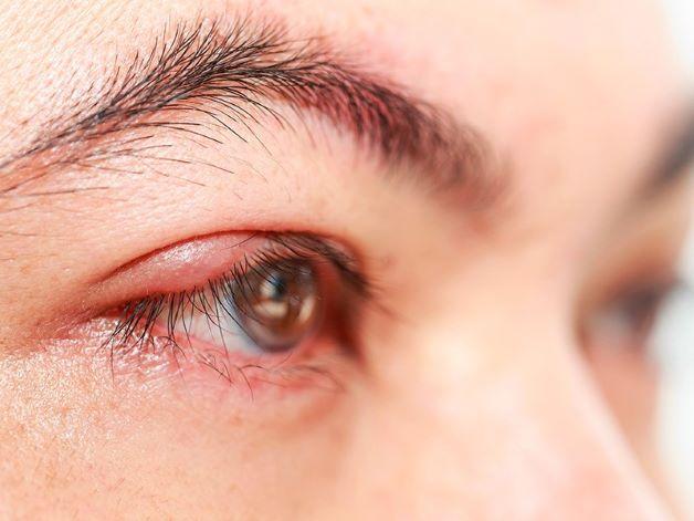 Biểu hiện của viêm kết mạc là mắt của người bệnh sẽ phù ở chân mi kèm theo các triệu chứng đi kèm như: ho, hắt hơi, sổ mũi, viêm họng và hạch