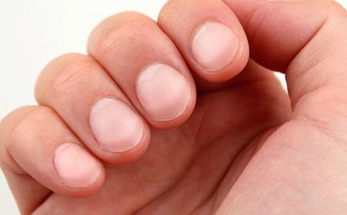 Ngón tay dùi trống là biểu hiện bệnh lý của nhiều vấn đề sức khỏe