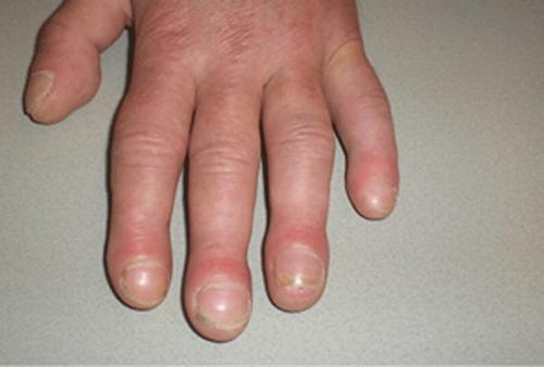 Khi bị ngón tay hình dùi trống, phần móng lồi hơn mức bình thường tùy theo từng giai đoạn.