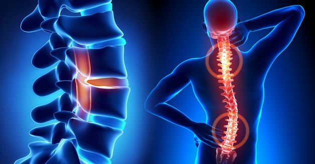 tổng quan về các bệnh lý cột sống thắt lưng