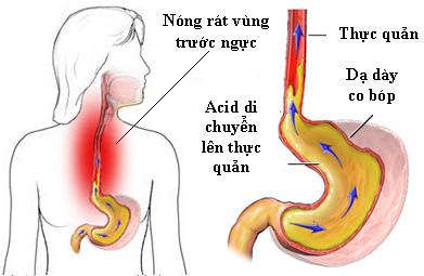 Tùy từng mức độ bệnh khác nhau sẽ có các loại thuốc chữa trào ngược dạ dày thực quản phù hợp.