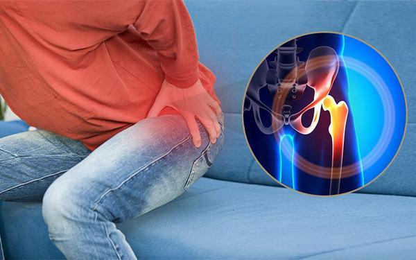 Trật khớp háng có thể do bẩm sinh hoặc mắc phải khi bị tai nạn, ngã