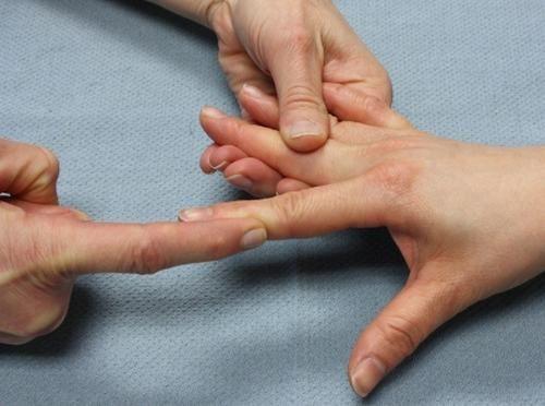 Khi có áp lực lên ngón tay như chấn thương, uốn mạnh ngón tay gây lệch quá mức có thể gây trật khớp