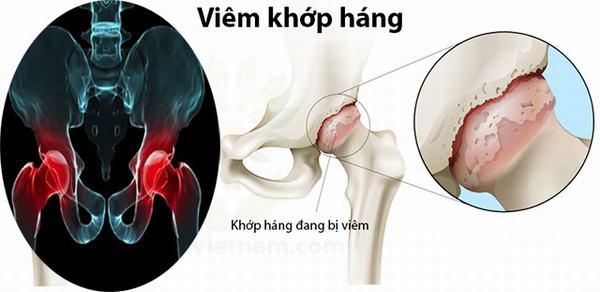 Viêm khớp háng gây ra cảm giác đau đớn, khó chịu, khó khăn khi đi lại, vận động