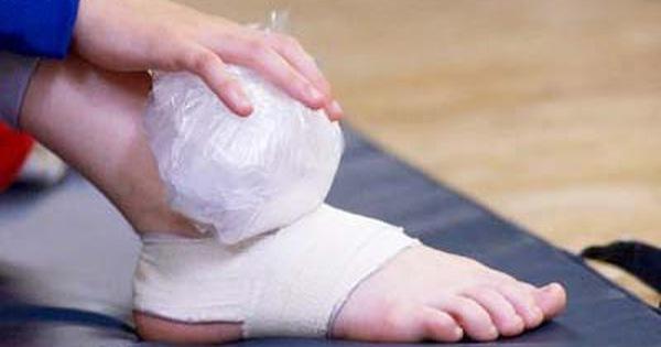 Trẹo chân chườm nóng hay chườm lạnh?