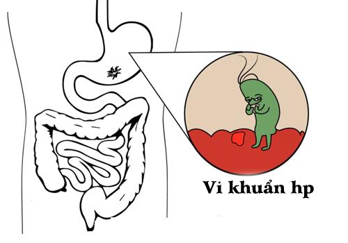 Vi khuẩn HP cư trú trong lớp niêm mạc dạ dày và gây ra các triệu chứng của các bệnh dạ dày