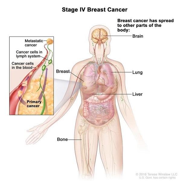 Ung thư vú giai đoạn cuối có khả năng di căn rộng đến các cơ quan như xương, gan, phổi, não...