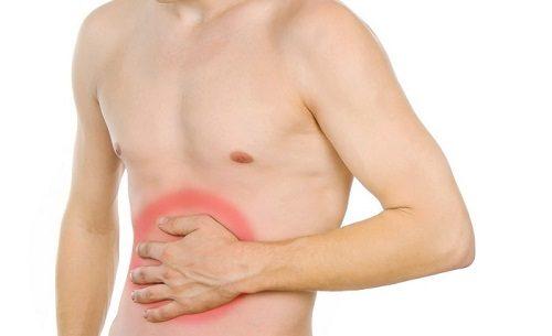 Triệu chứng Polyp đại tràng là một khối phát triển bất thường trên bề mặt ruột già