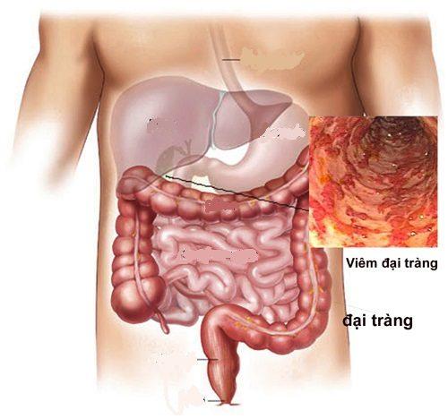 Câu hỏi bệnh đường ruột là gì đến từ rất nhiều người bởi các bệnh thuộc nhóm này vô cùng phổ biến hiện nay.