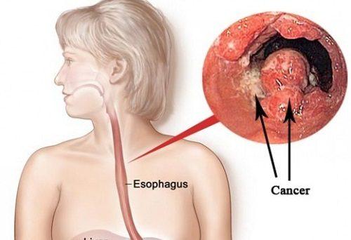 Ung thư thực quản là một trong những bệnh lý ung thư nguy hiểm trong các bệnh ung thư đường tiêu hóa.