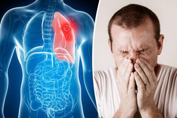 Triệu chứng u phổi lành tính
