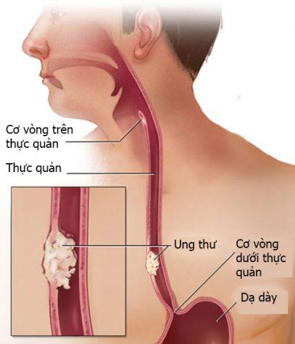 Các bệnh ở thực quản hay gặp nhất có thể kể đến: Viêm thực quản, ung thư thực quản, tâm vị không giãn.