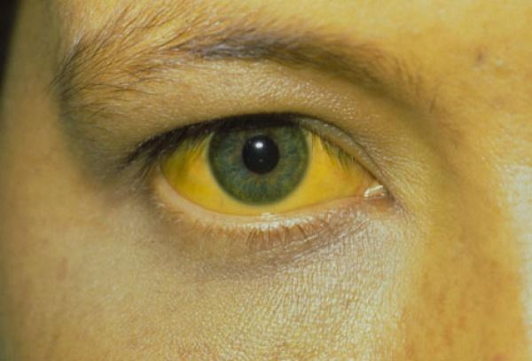 Vàng da, vàng mắt có thể gặp ở bệnh nhân ung thư di căn đến gan