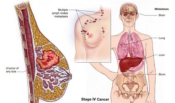 Ung thư vú giai đoạn cuối có thể di căn đến các cơ quan ở xa, trong đó có não