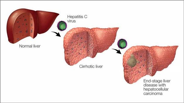 Nếu không kịp thời điều trị, bệnh viêm gan C có thể gây ra nhiều biến chứng