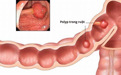 Đa phần polyp đại tràng là bệnh lành tính