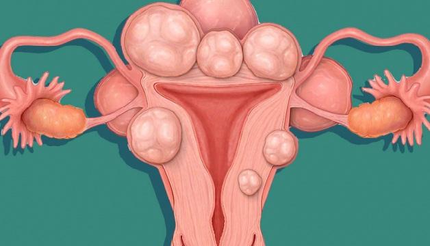 U xơ tử cung là căn bệnh nhiều chị em phụ nữ gặp phải