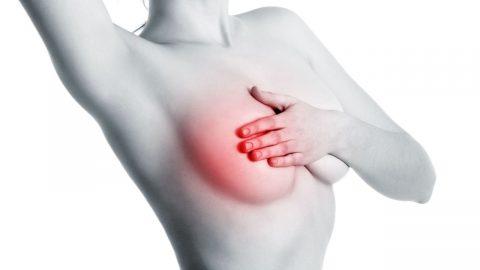 U xơ tuyến vú có nguy hiểm không? Có chữa được không?