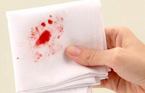 Người bệnh còn bị nôn ra máu khi bị ung thư dạ dày