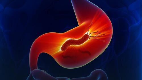 Vi khuẩn HP là yếu tố làm tăng nguy cơ mắc ung thư dạ dày