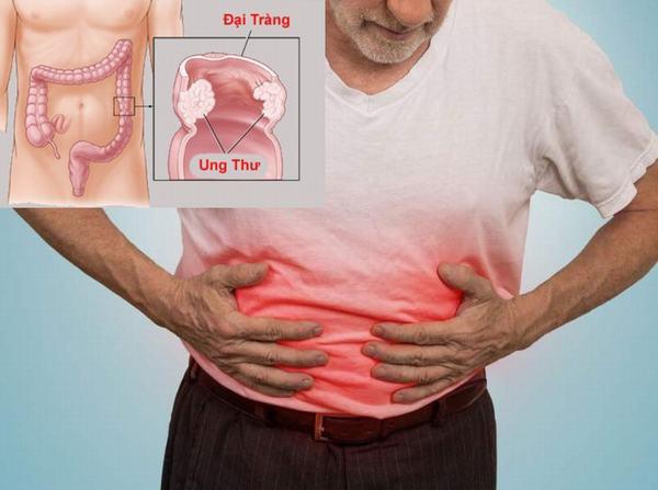 Người bệnh ung thư đại tràng di căn sẽ gây ảnh hưởng nghiêm trọng tới sức khỏe