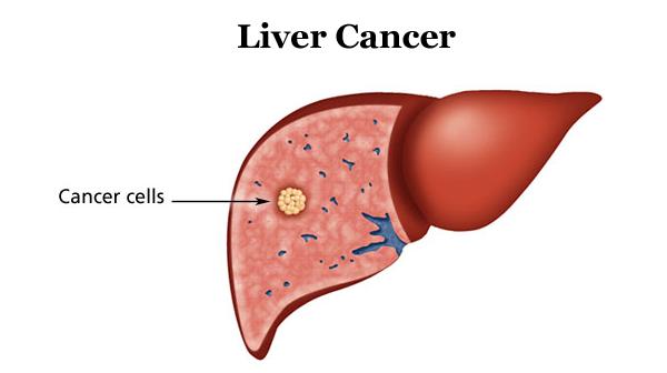 Ung thư gan tái phát là tình trạng bên trong cơ thể vẫn còn tế bào ung thư.