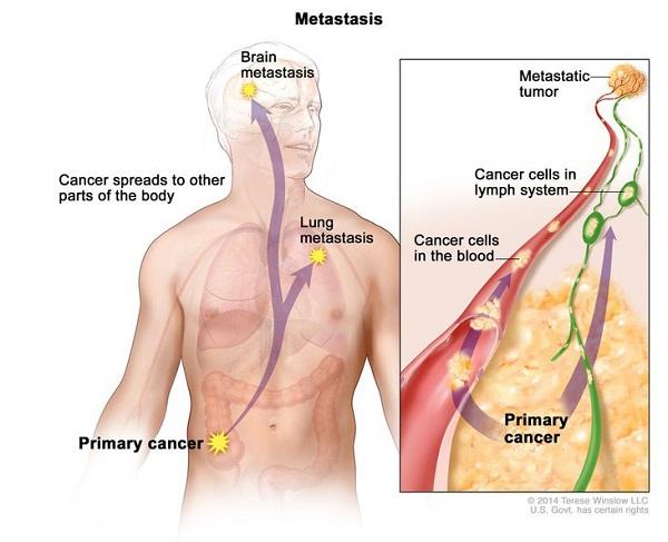 Ung thư di căn ở giai đoạn cuối là nỗi ám ảnh của nhiều người bệnh