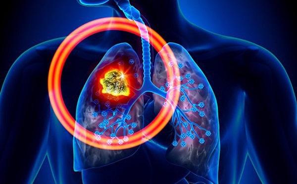 Ung thư phổi có chữa được không?