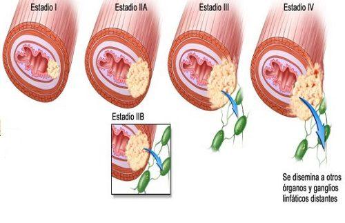 Ở giai đoạn cuối, khối u trong lòng thực quản đã phát triển to ra và xâm lấn sang nhiều cơ quan trong cơ thể